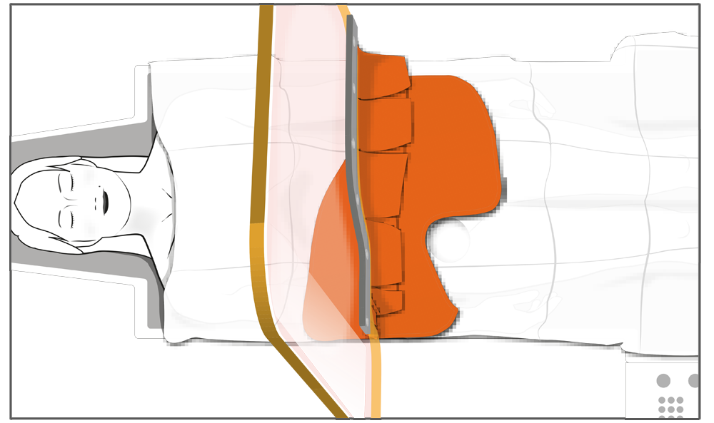 Use of the reusable radiation protective drape for femoral access in conjunction with the radiation protective shield with panel curtain (series ST-FS5AMM).